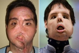 Noul chip al lui Oscar, spaniolul care a suferit primul transplant total de fata