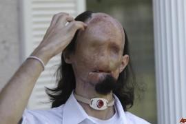 Transplant total de fata pentru un tanar american