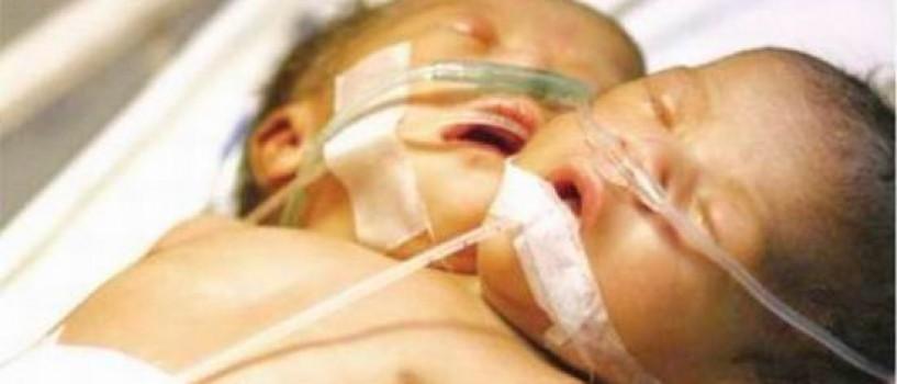 O chinezoaica a nascut o fetita cu doua capete