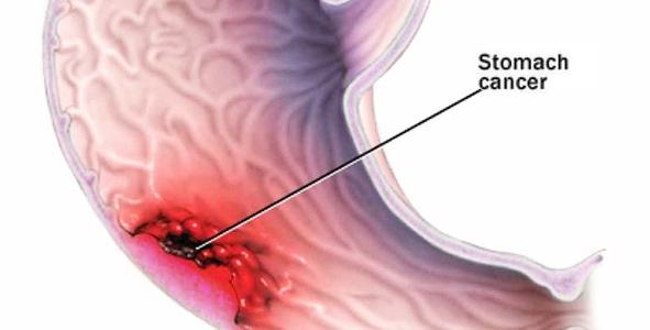 Cancerul de stomac, detectat printr-un simplu test de respiratie