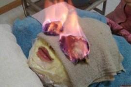 Incendiul facial – ultima gaselnita in materie de frumusete si tinerete vesnica!