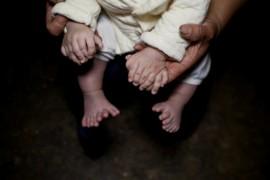 Un copil chinez s-a nascut cu 31 de degete!