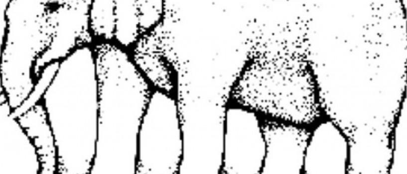 Cate picioare vezi in imagine? Problema inca le mai da batai de cap internautilor!